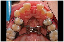 Sarpe Case Dr Marcos Diaz Private Oral Maxillofacial